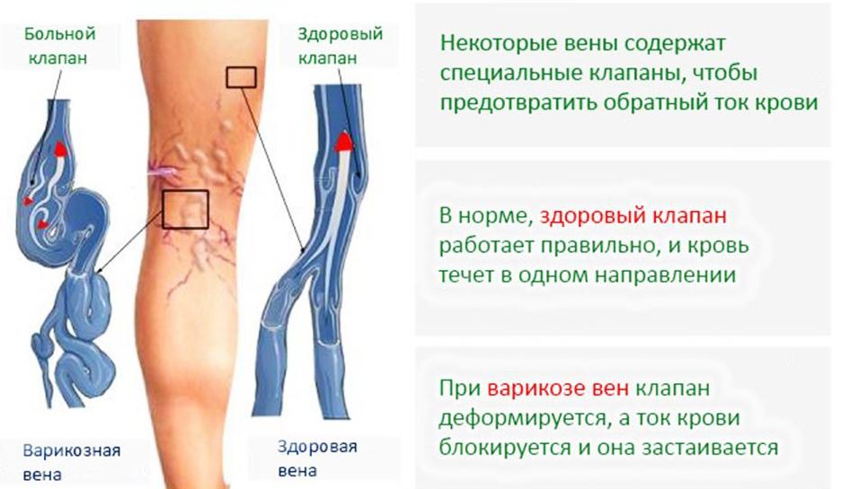 varikoznom-rasshirenii-ven-1.jpg