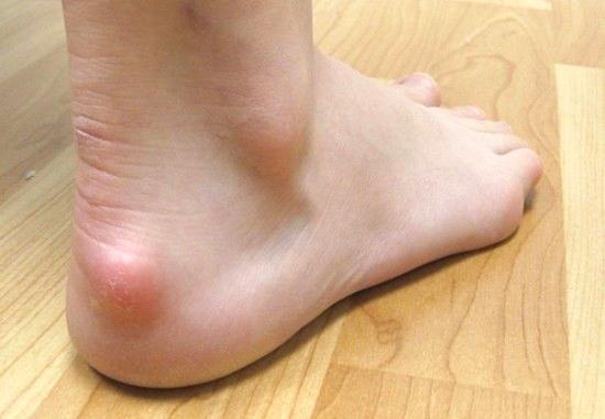 Бурсит стопы лечение в домашних условиях фото