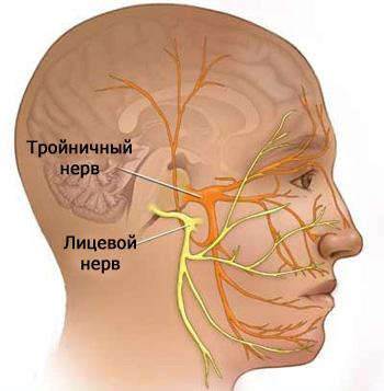 Тройничный нерв при рассеянном склерозе